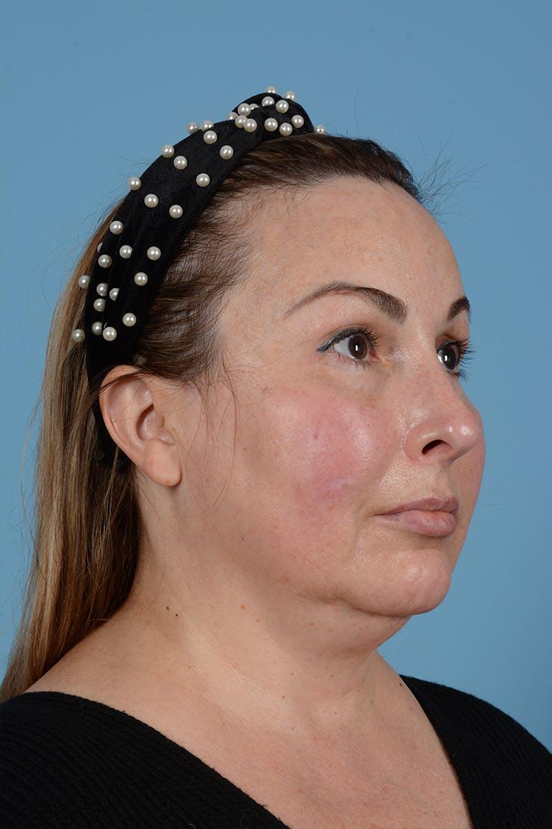 Facelift Gallery - Patient 52643815 - Image 5