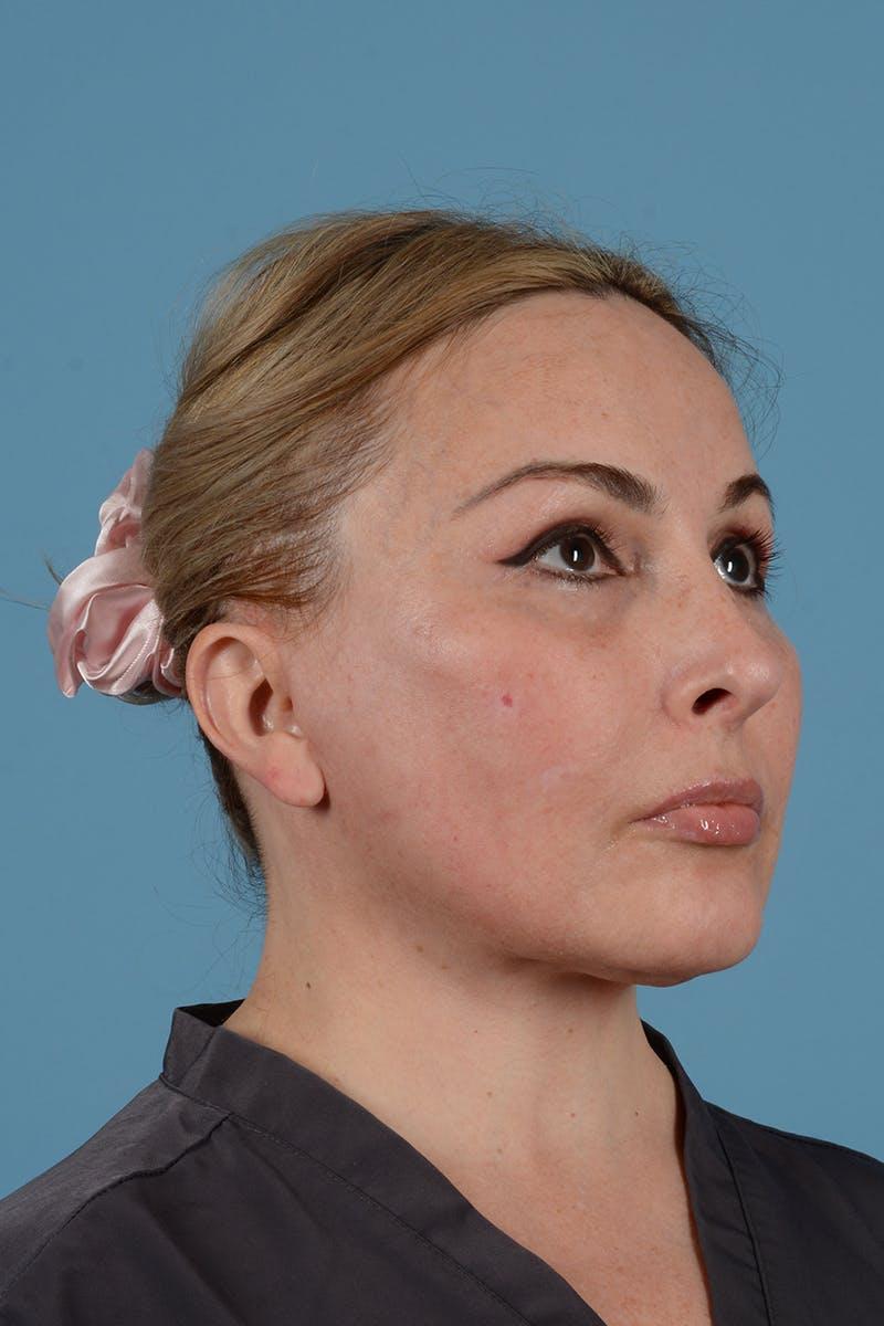 Facelift Gallery - Patient 52643815 - Image 6