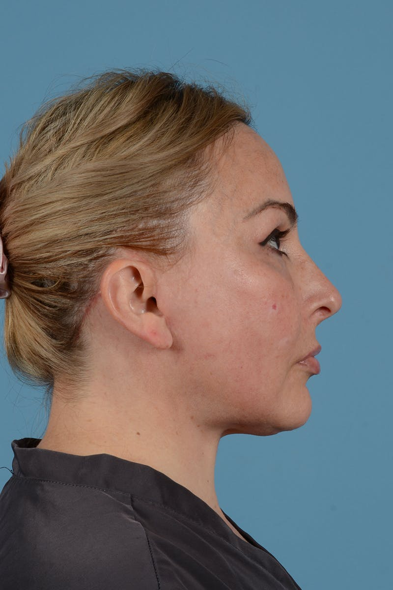 Facelift Gallery - Patient 52643815 - Image 8