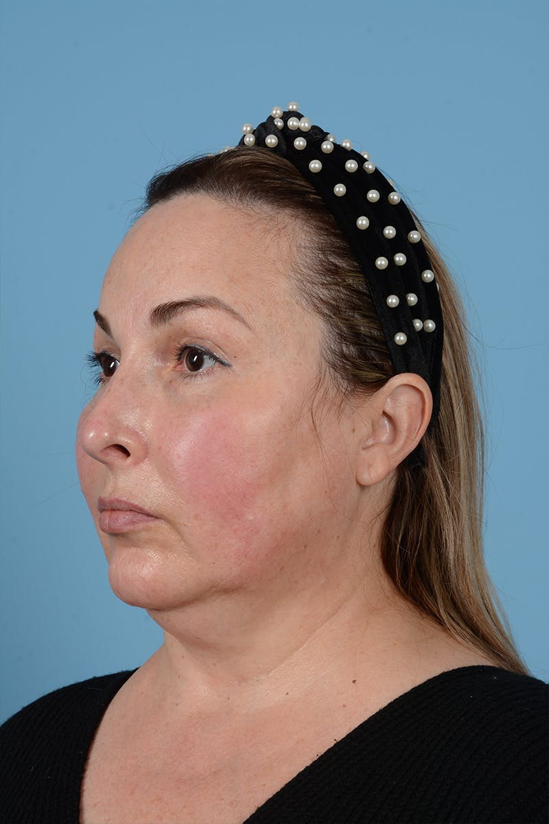 Facelift Gallery - Patient 52643815 - Image 9