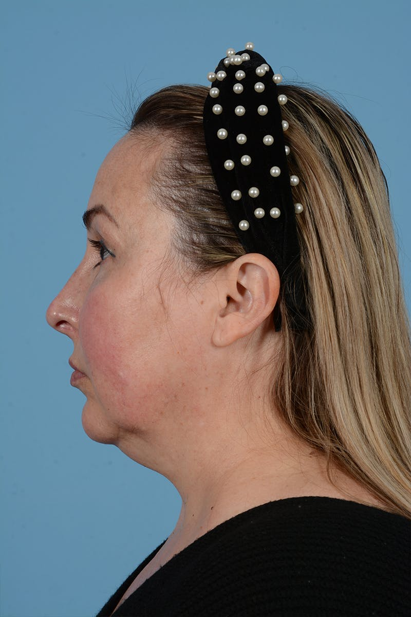 Facelift Gallery - Patient 52643815 - Image 11