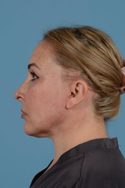 Facelift Gallery - Patient 52643815 - Image 12