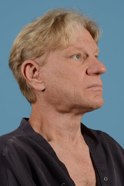 Neck Lift Gallery - Patient 52644082 - Image 4