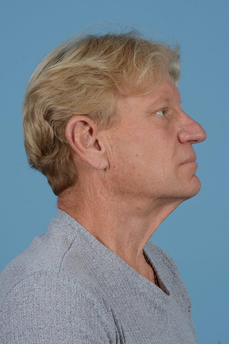 Neck Lift Gallery - Patient 52644082 - Image 5