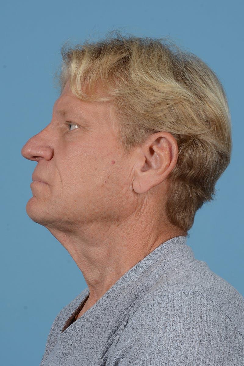 Neck Lift Gallery - Patient 52644082 - Image 9
