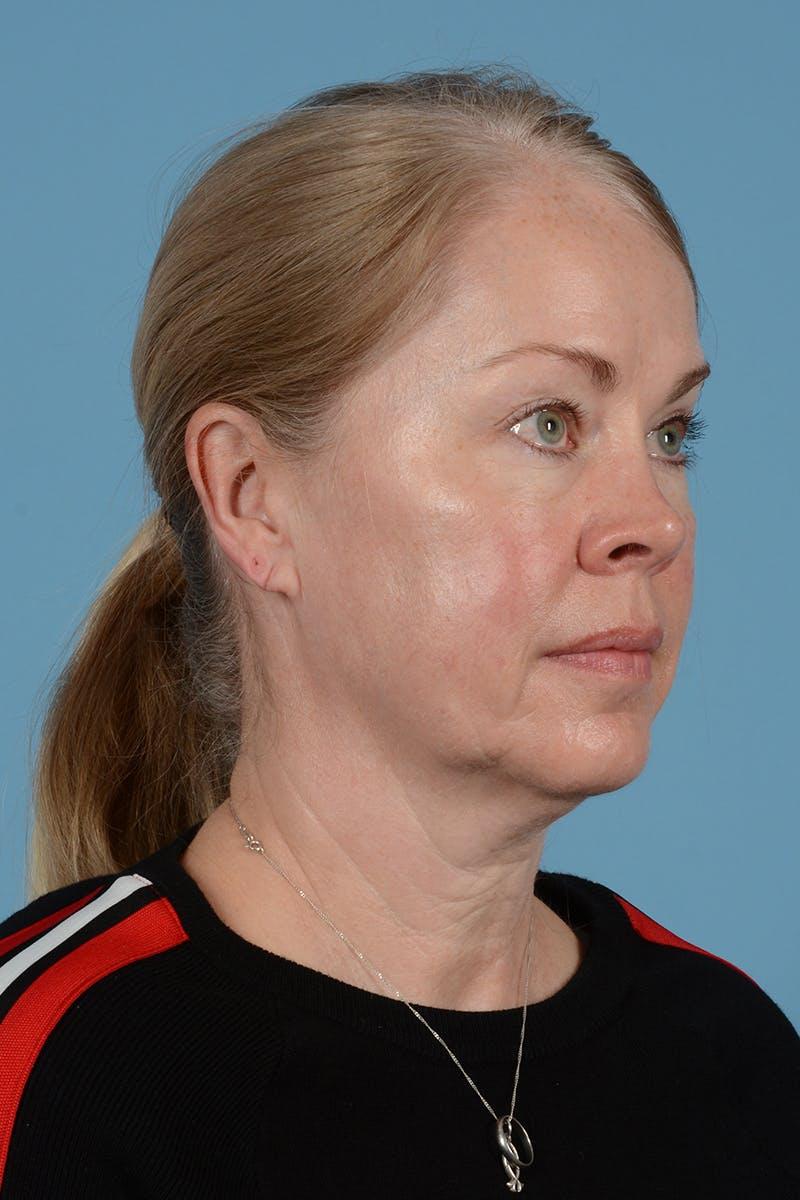 Facelift Gallery - Patient 52644241 - Image 5