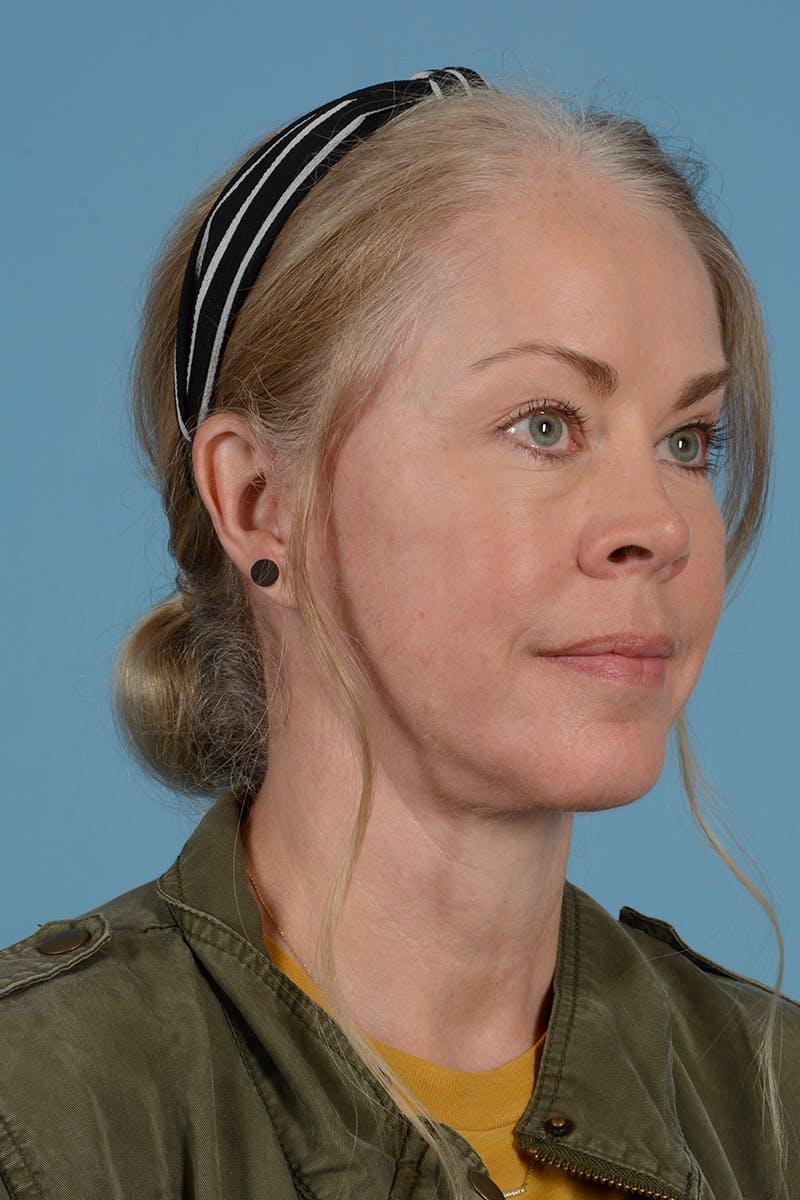 Facelift Gallery - Patient 52644241 - Image 6