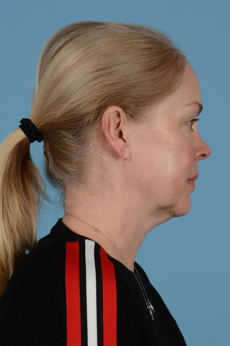 Facelift Gallery - Patient 52644241 - Image 7