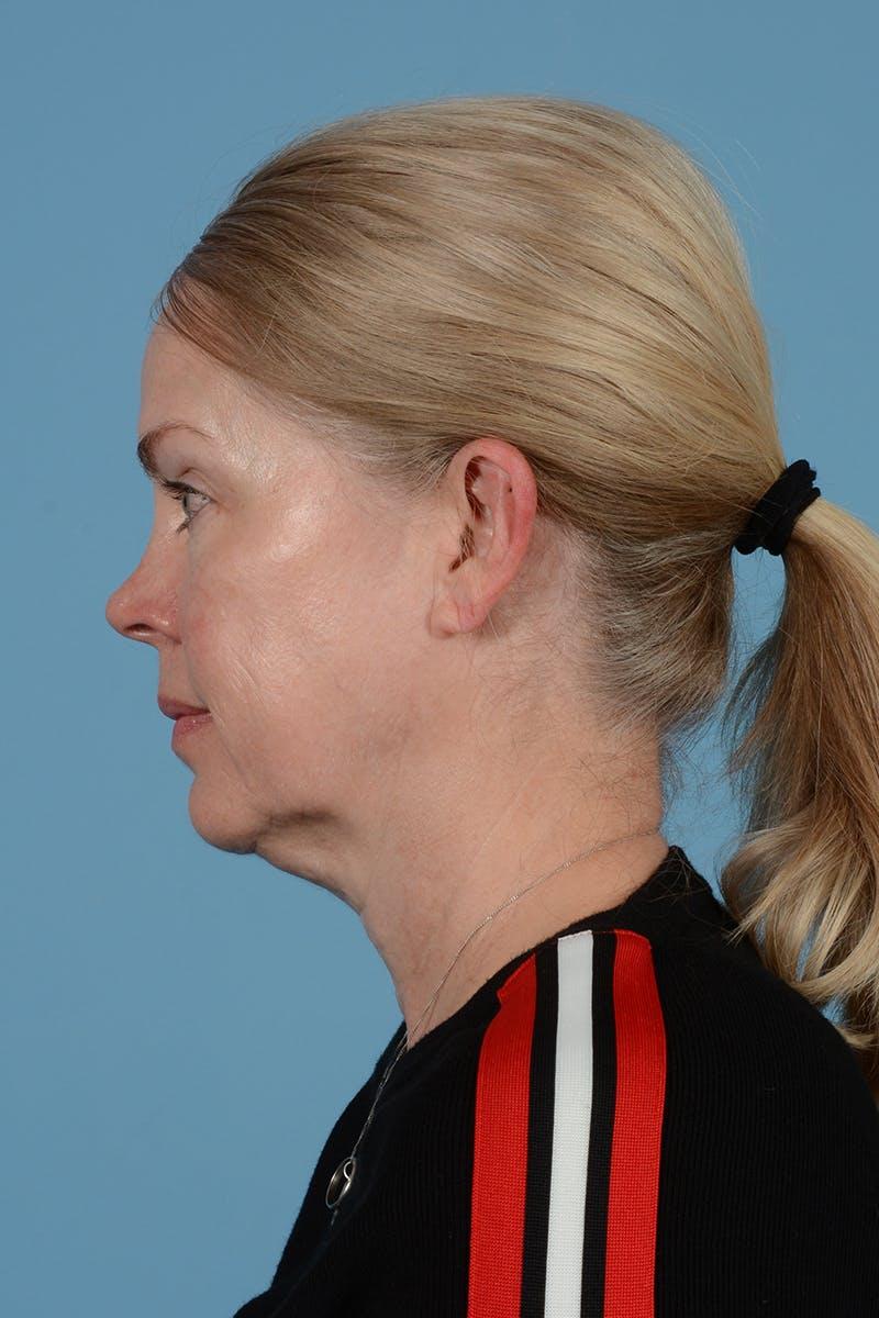 Facelift Gallery - Patient 52644241 - Image 11