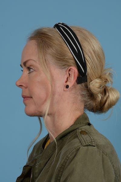 Facelift Gallery - Patient 52644241 - Image 12