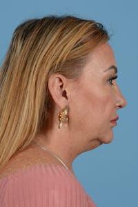 Neck Lift Gallery - Patient 52644393 - Image 1