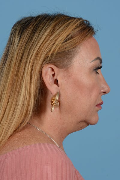 Facelift Gallery - Patient 52644392 - Image 1