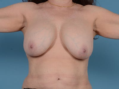 Breast Lift Gallery - Patient 52644416 - Image 1