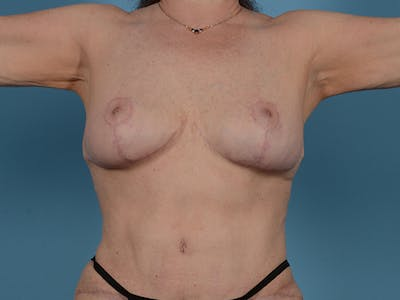 Fat Grafting Gallery - Patient 52644418 - Image 2