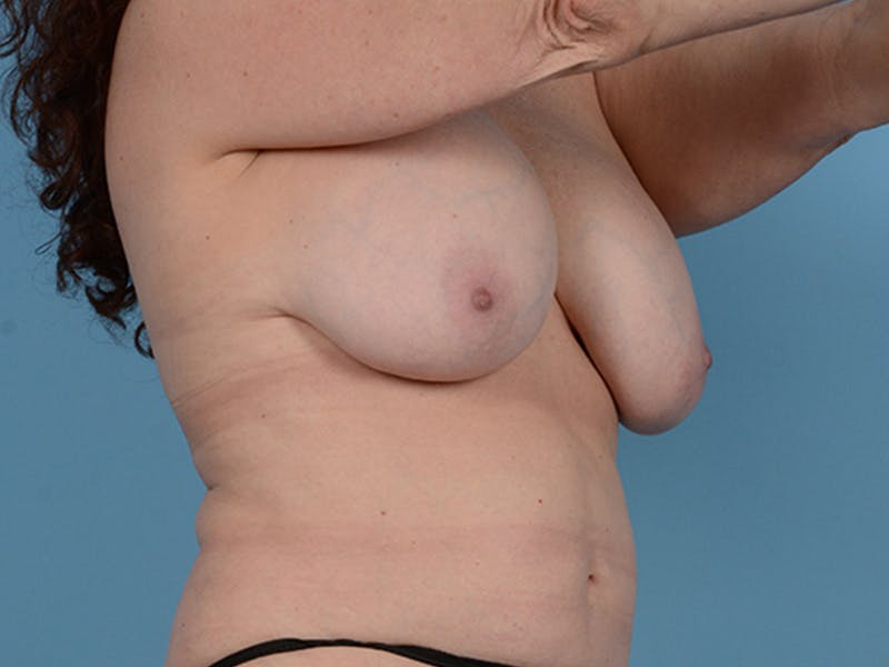 Fat Grafting Gallery - Patient 52644418 - Image 3