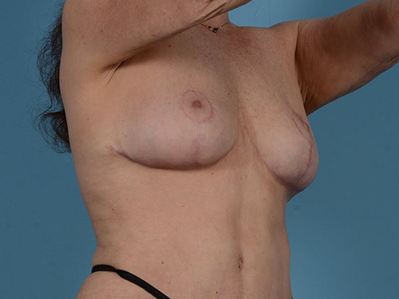 Fat Grafting Gallery - Patient 52644418 - Image 4