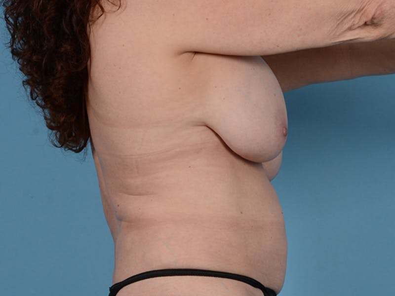 Fat Grafting Gallery - Patient 52644418 - Image 5