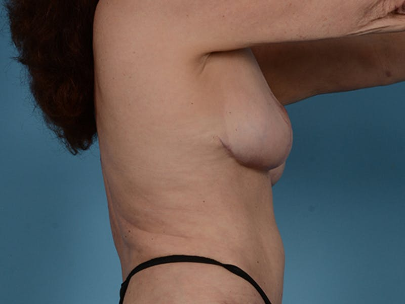 Fat Grafting Gallery - Patient 52644418 - Image 6