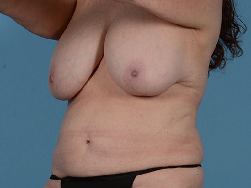 Fat Grafting Gallery - Patient 52644418 - Image 7