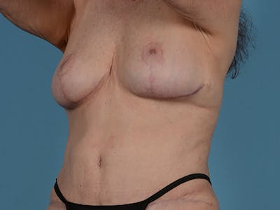 Fat Grafting Gallery - Patient 52644418 - Image 8