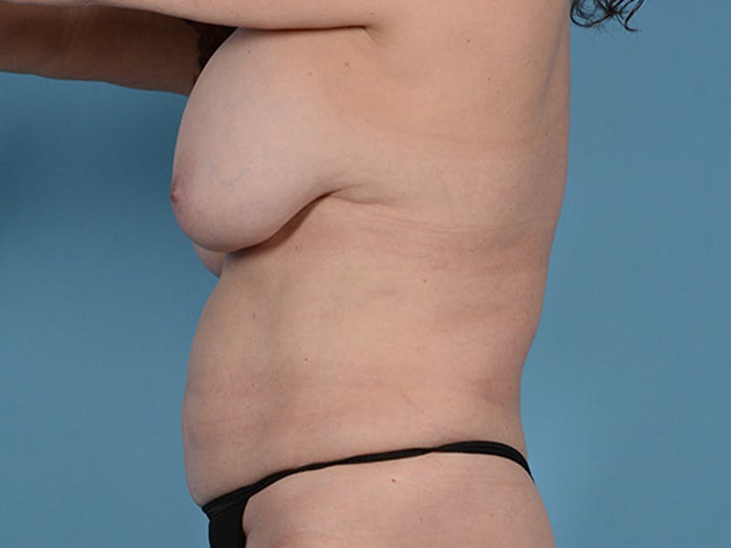 Fat Grafting Gallery - Patient 52644418 - Image 9