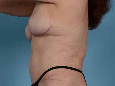 Fat Grafting Gallery - Patient 52644418 - Image 10