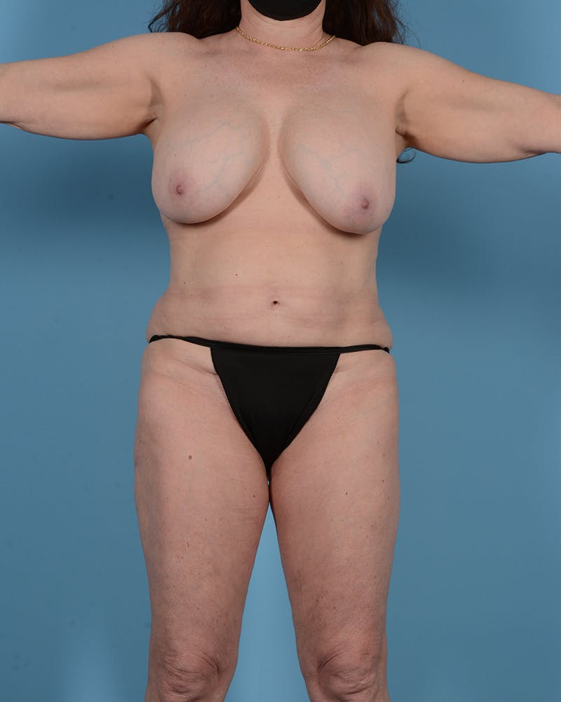 Tummy Tuck Gallery - Patient 52644457 - Image 1