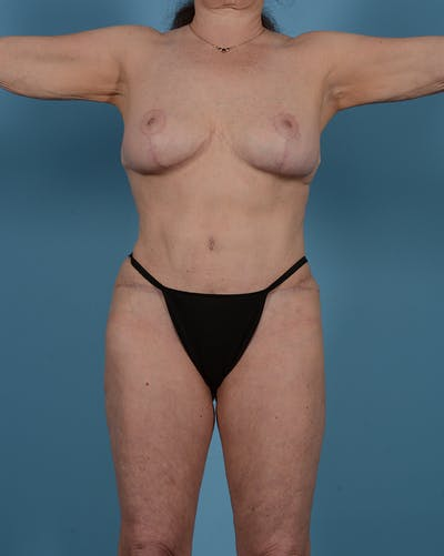 Tummy Tuck Gallery - Patient 52644457 - Image 2