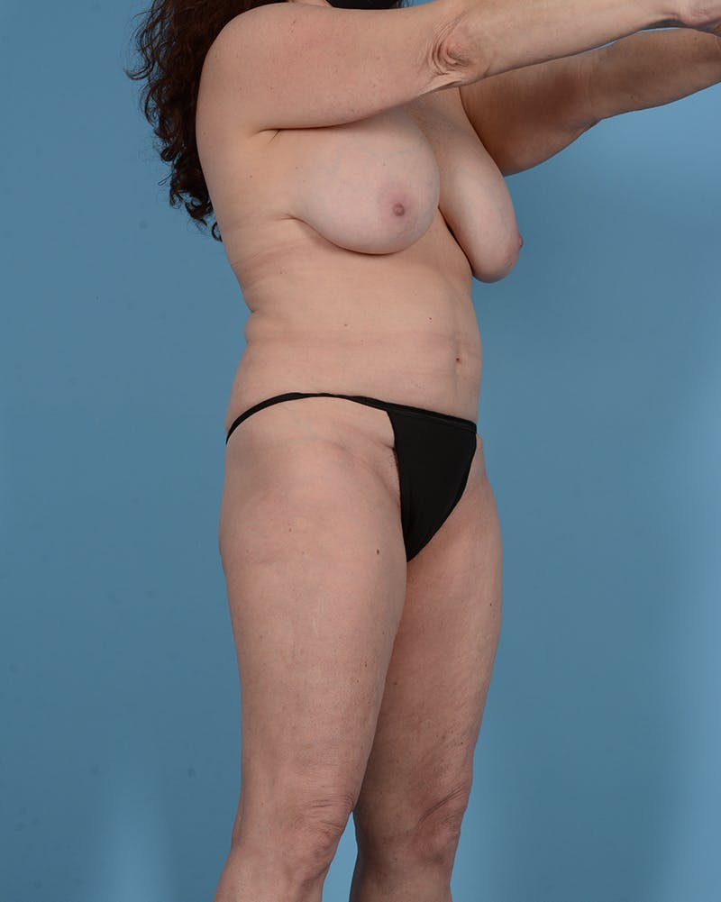 Tummy Tuck Gallery - Patient 52644457 - Image 3
