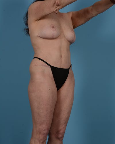 Tummy Tuck Gallery - Patient 52644457 - Image 4