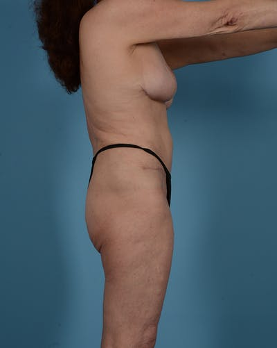 Tummy Tuck Gallery - Patient 52644457 - Image 6
