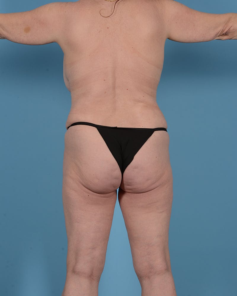 Tummy Tuck Gallery - Patient 52644457 - Image 7