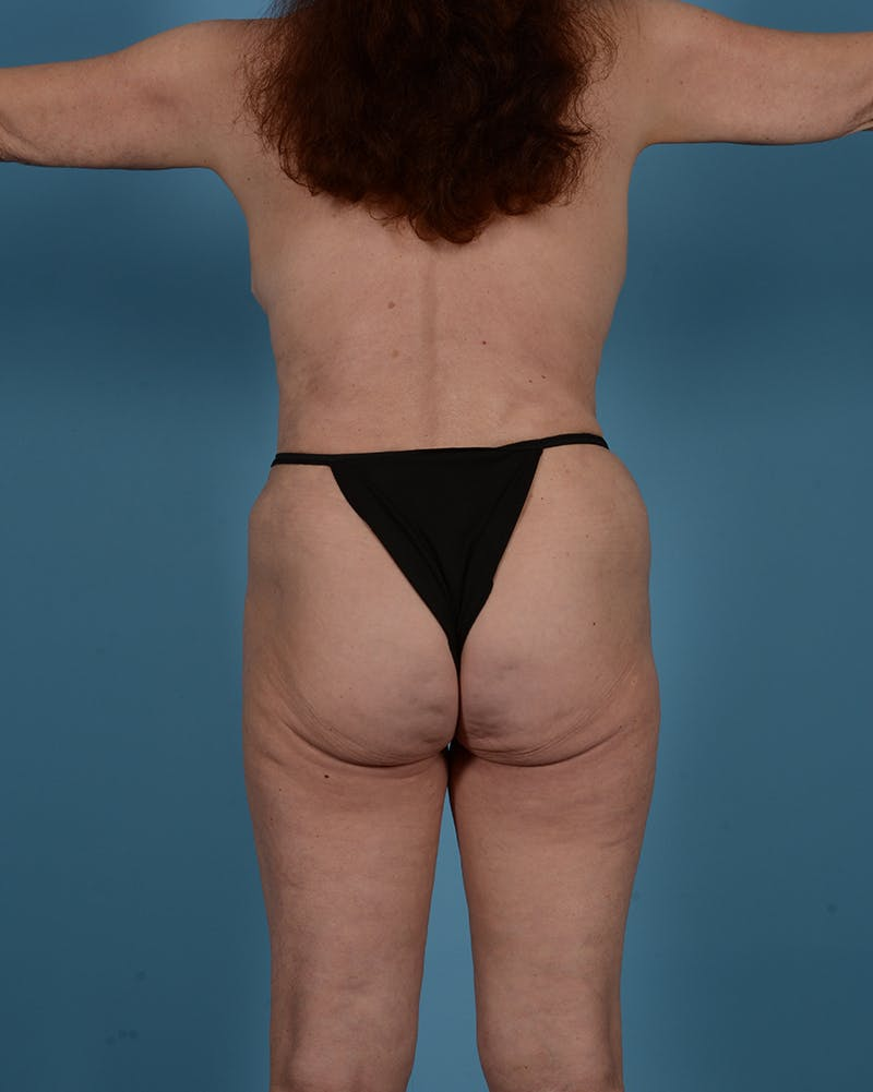Tummy Tuck Gallery - Patient 52644457 - Image 8