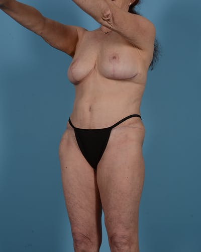 Tummy Tuck Gallery - Patient 52644457 - Image 10
