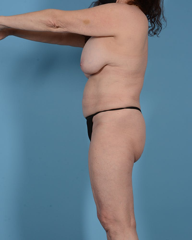Tummy Tuck Gallery - Patient 52644457 - Image 11
