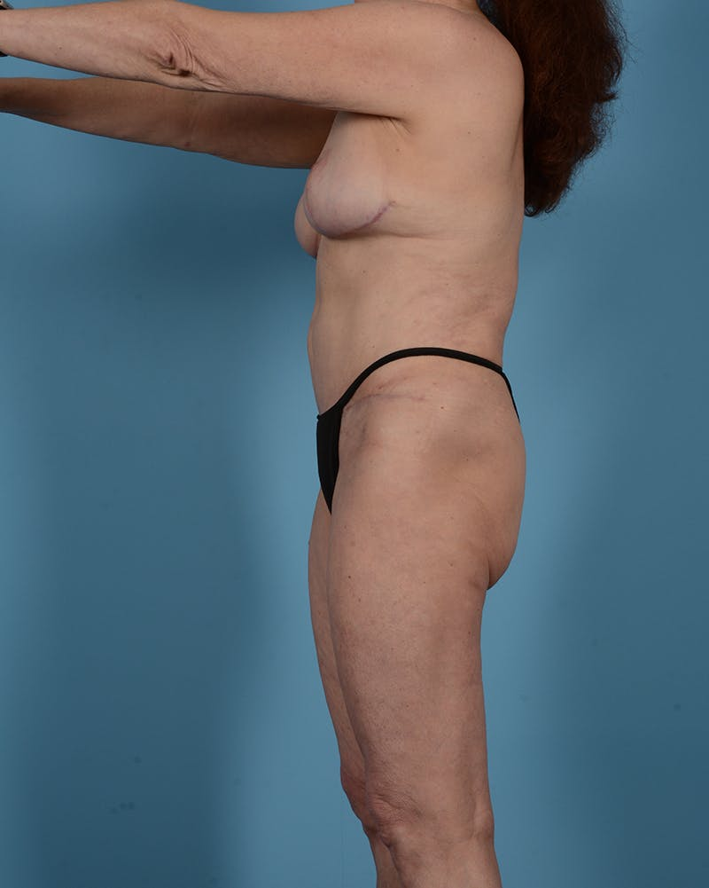 Tummy Tuck Gallery - Patient 52644457 - Image 12