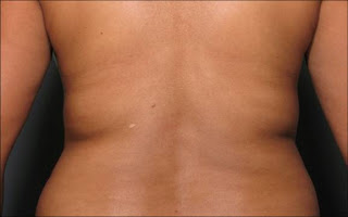 Sanctuary Plastic Surgery Blog | The War on Fat: Updates on Zeltiq & Ultrashape