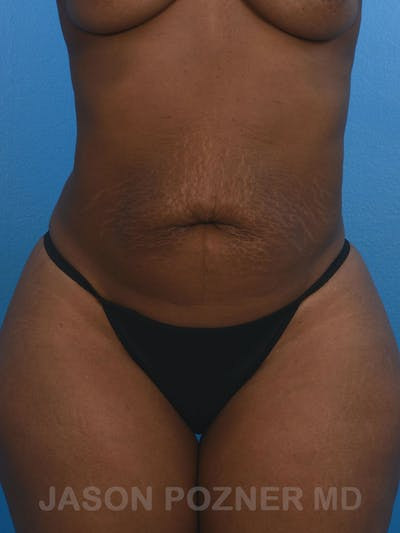 Tummy Tuck Gallery - Patient 17932022 - Image 1