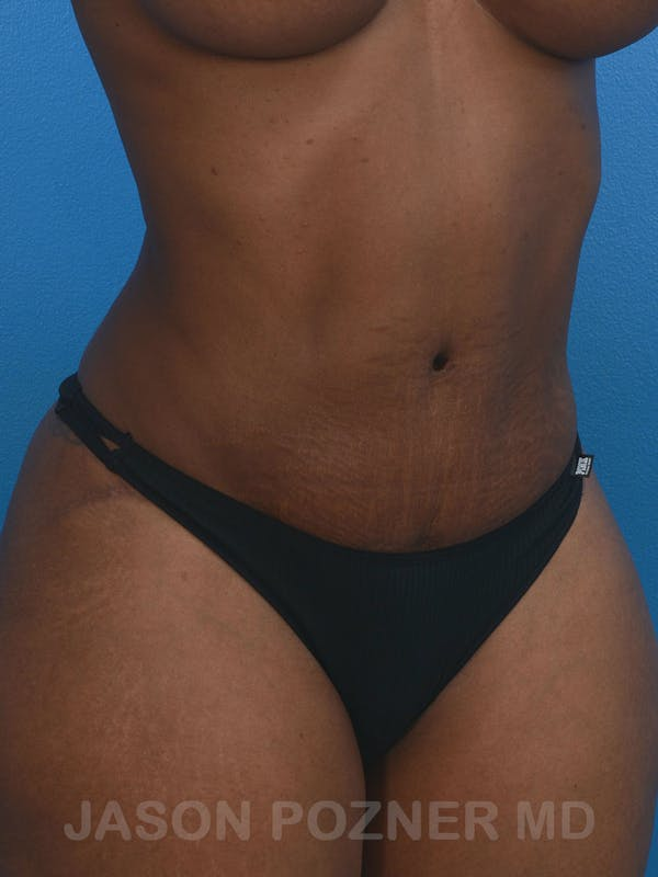 Tummy Tuck Gallery - Patient 17932022 - Image 4