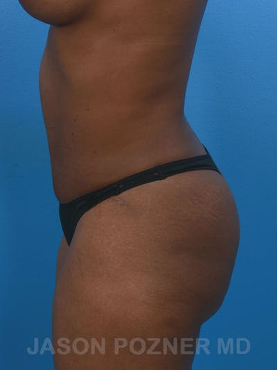Tummy Tuck Gallery - Patient 17932022 - Image 6
