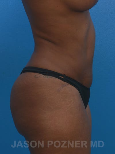 Tummy Tuck Gallery - Patient 17932022 - Image 8