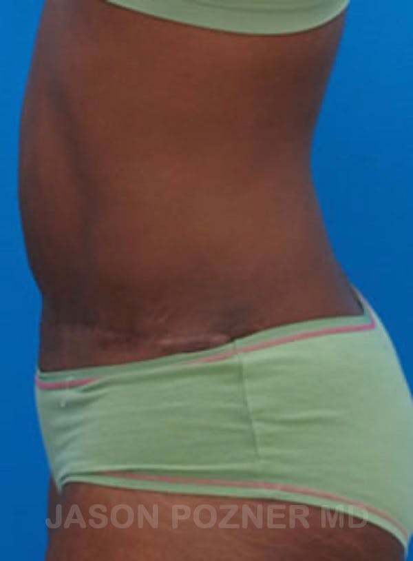 Tummy Tuck Gallery - Patient 17932029 - Image 2