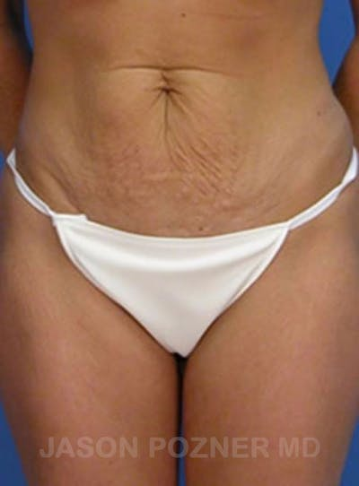 Tummy Tuck Gallery - Patient 17932030 - Image 1