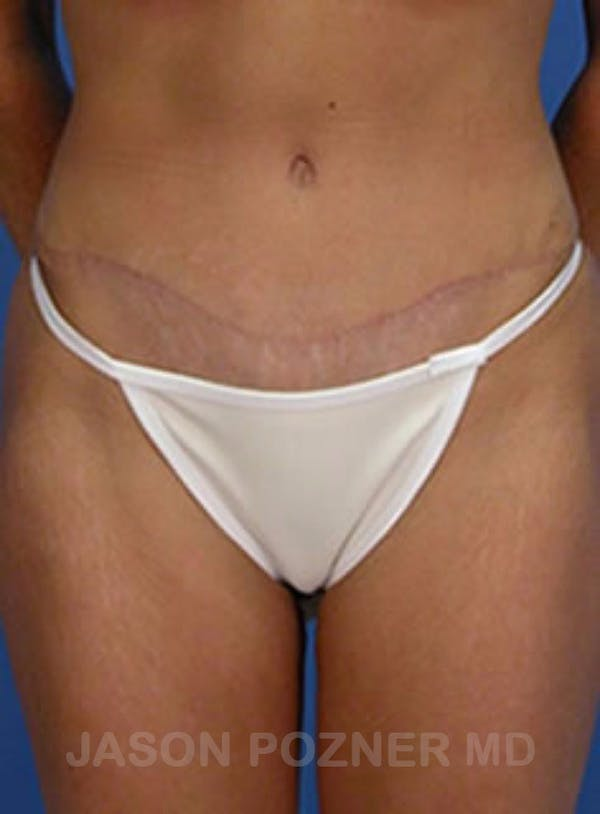 Tummy Tuck Gallery - Patient 17932030 - Image 2
