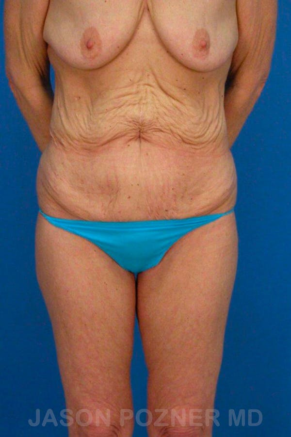Body Lift Gallery - Patient 17932069 - Image 1
