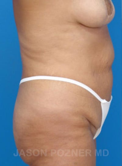 Body Lift Gallery - Patient 17932073 - Image 1
