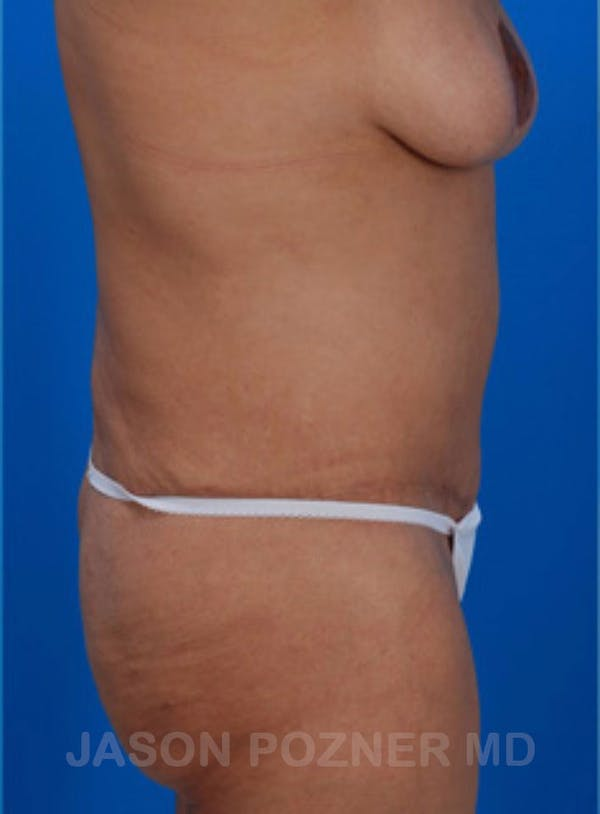 Body Lift Gallery - Patient 17932073 - Image 2