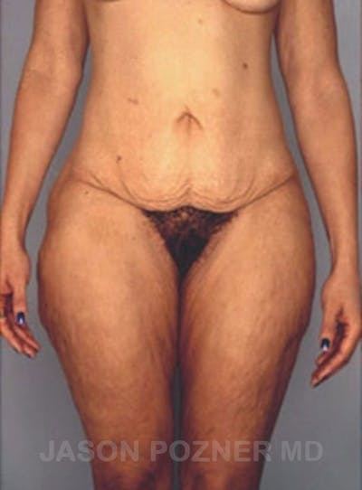 Body Lift Gallery - Patient 17932075 - Image 1