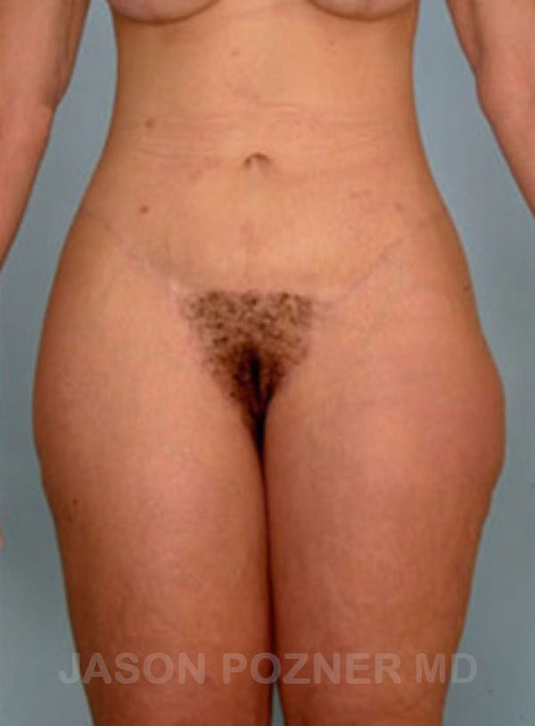 Body Lift Gallery - Patient 17932075 - Image 2