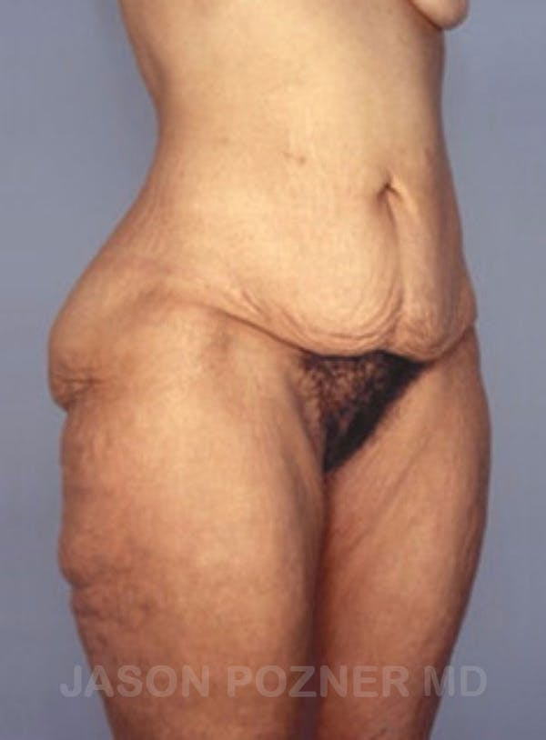 Body Lift Gallery - Patient 17932075 - Image 3
